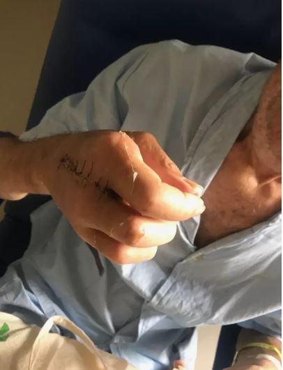 Sua mão direita, que teve o dedo médio amputado, no domingo de Páscoa, 16 de abril.
