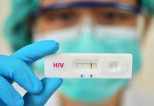 Governo suspende exames de HIV, AIDS e hepatites virais pelo SUS